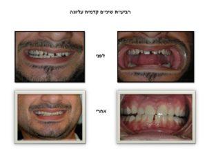רביעיית שיניים עליונה - ציפוי חרסינה