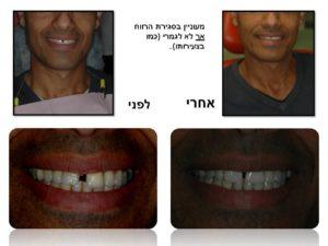 צמצום רווח בשיניים קדמיות