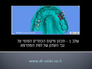 השתלת שיניים ממוחשבת - שלב 1