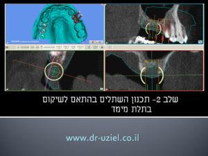 השתלת שיניים ממוחשבת - שלב 2 מיקום השתלים