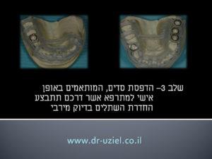 השתלת שיניים מונחית מחשב שלב 3
