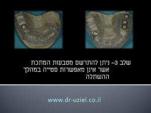 השתלת שיניים מונחית מחשוב שלב 3
