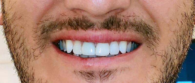 אחרי הלבנת שיניים בהרצליה - דוקטור עוזיאל יפת
