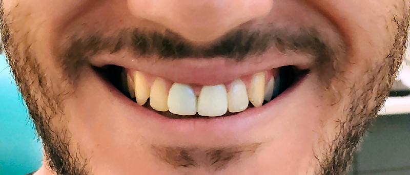 לפני הלבנת שיניים בהרצליה - דוקטור עוזיאל יפת